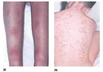 Сыпь имеет вид кольцевидных красных пятен, локализуется на туловище.